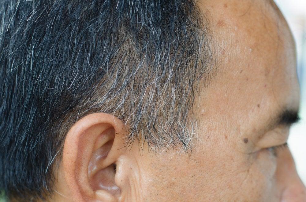 does stress cause grey hair   u00bb science abc