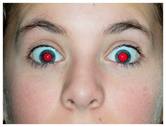Red Blood Eye Dog