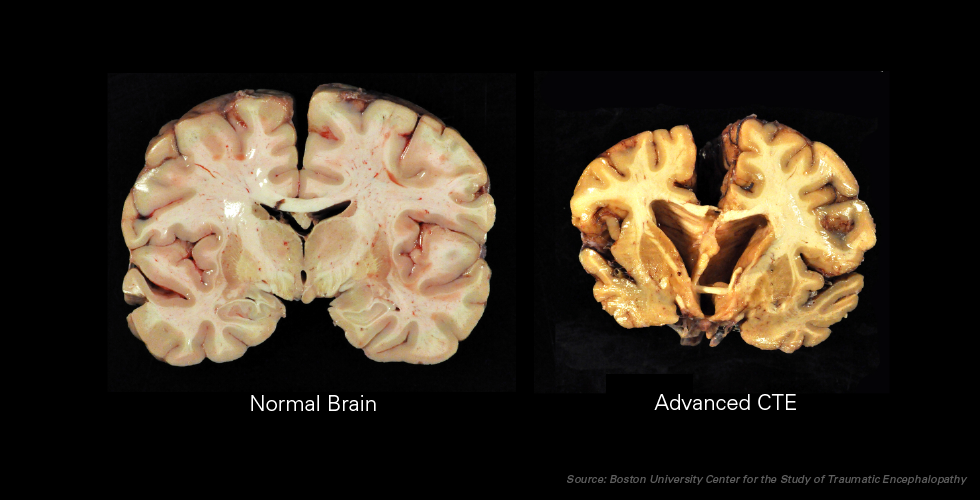 conditions of brain during CTE