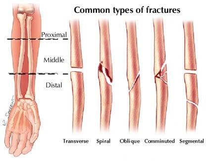 Fracture Healing Process and Factors Affecting Healing