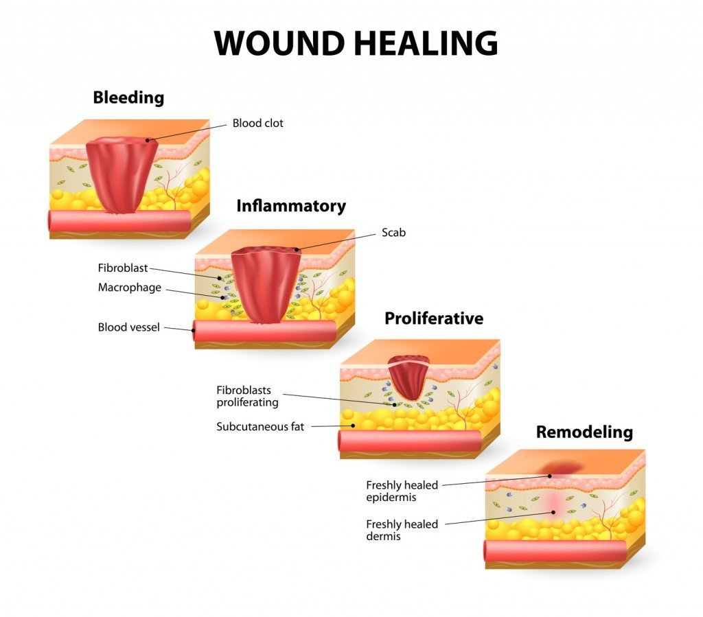 Image result for how do cuts heal