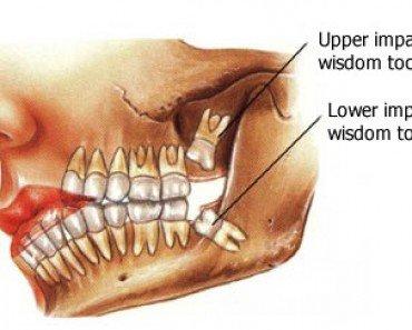 The wisdom teeth