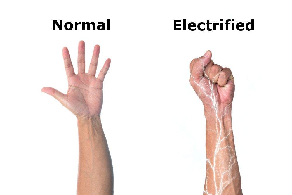 Electrified arm
