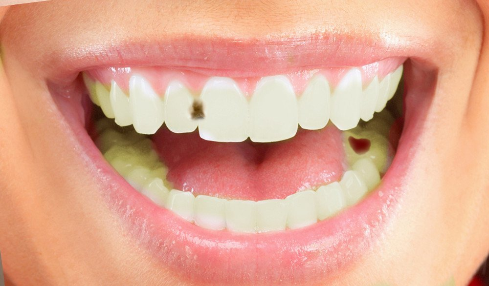How Do Cavities Form In Teeth Science Abc