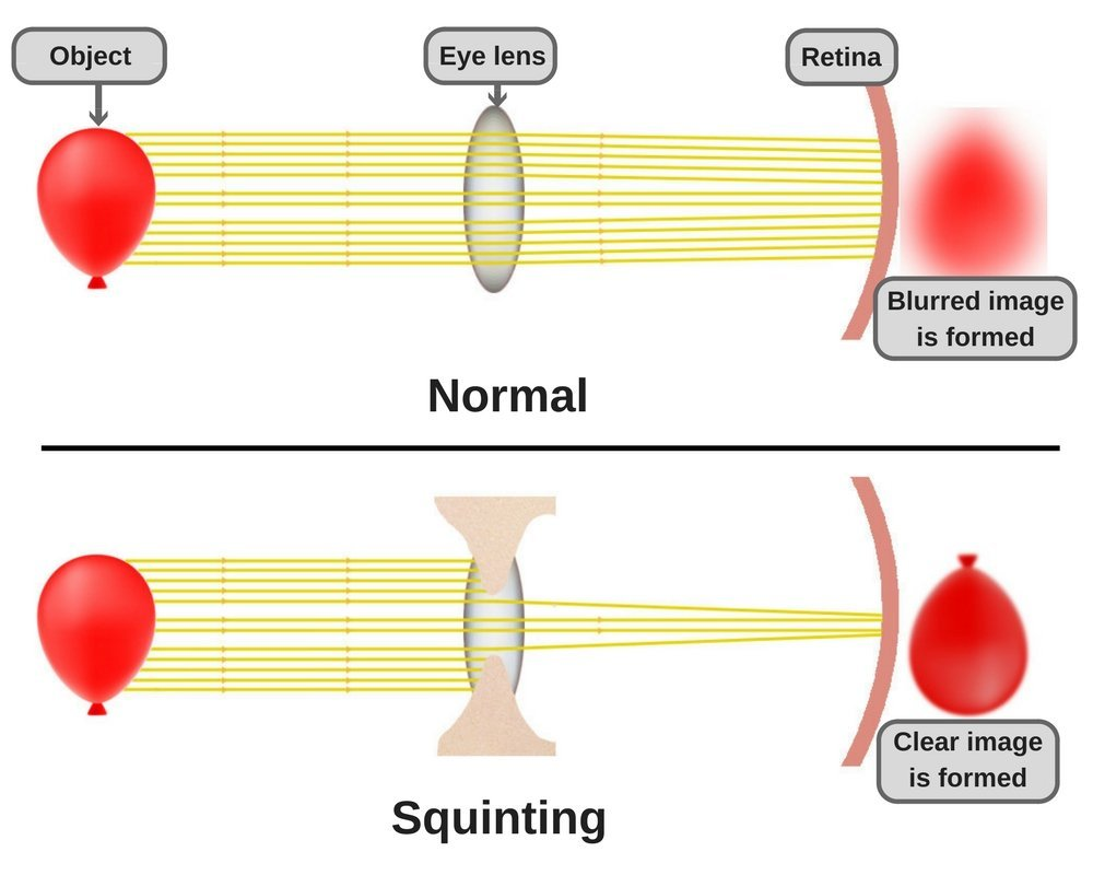 Why squinting helps us see better science abc while squinting the eyelids block a significant portion of the light rays entering the eye which helps form crisp image ccuart Choice Image