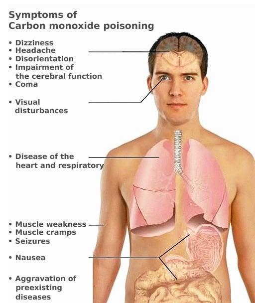 CO toxicity symptoms