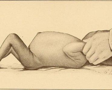 Kwashiorkor The diseases of infancy and childhood