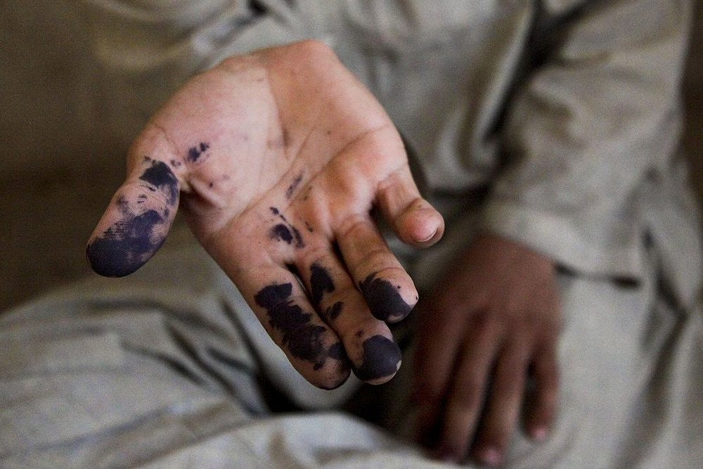 Ink stain on hand