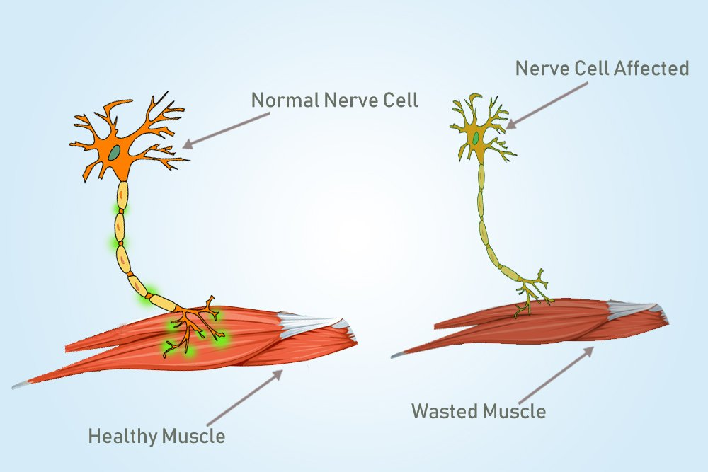 affected neuron and muscle