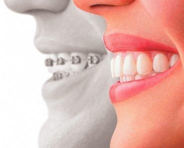 teeth brace