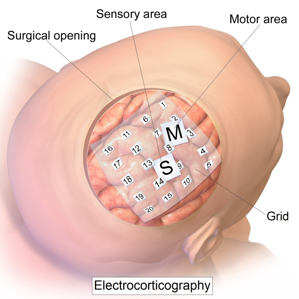 Intracranial electrode grid for electrocorticography