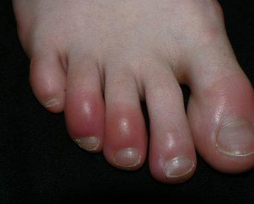 Acrocyanosis