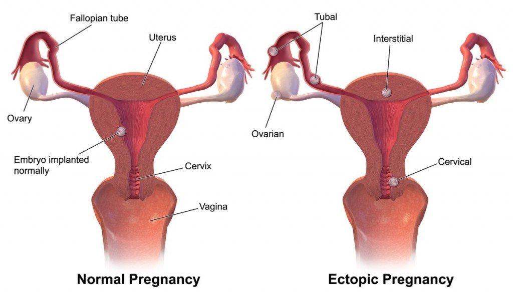 Ectopic_Pregnancy