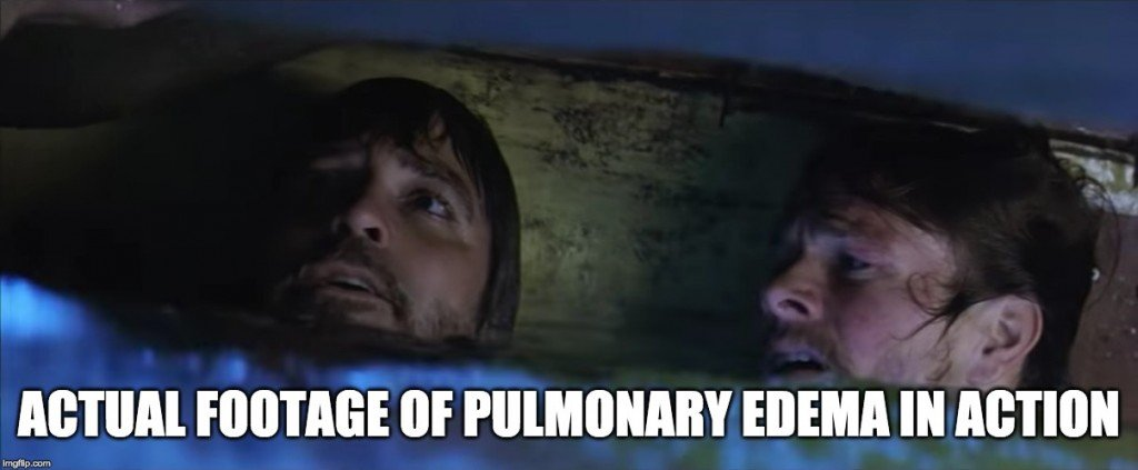 Actual footage of pulmonary edema in action