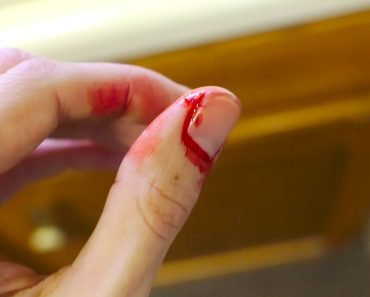 bleeding finger, blooding, injury, pain, hand