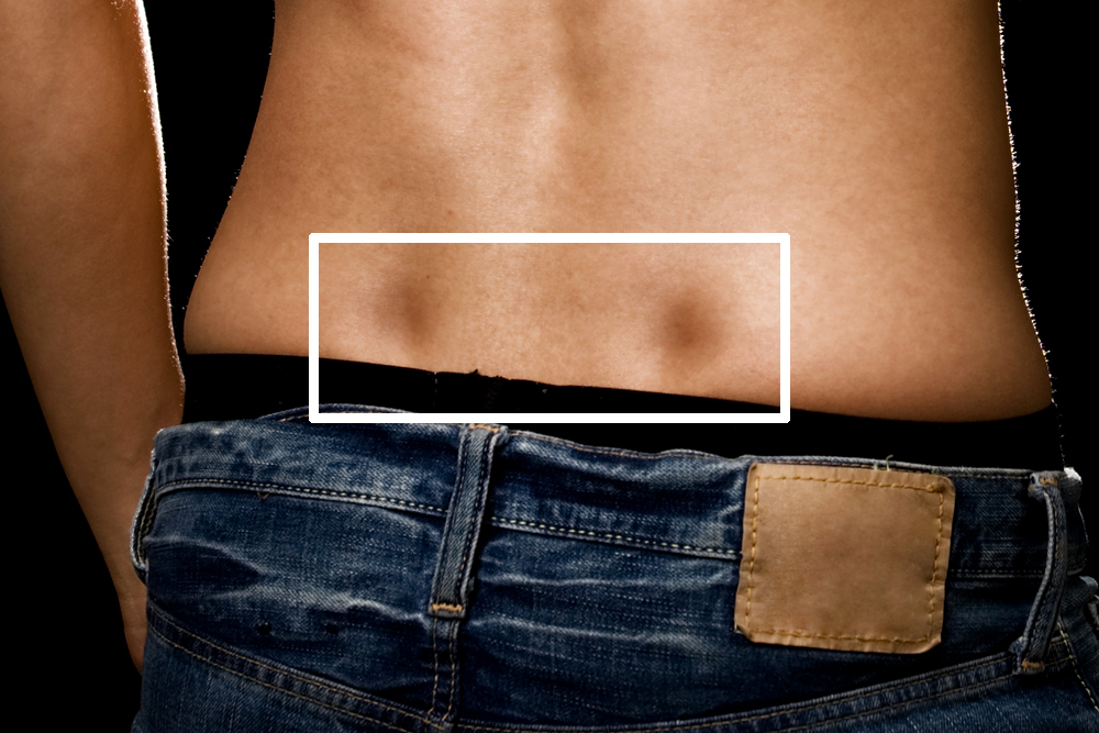 What Are Dimples of Venus? How Common Are They?