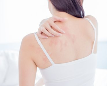 woman scratching her shoulder and neck because of dry skin at home(aslysun)s