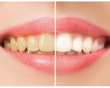 The female teeth before and after whitening(Master1305)s