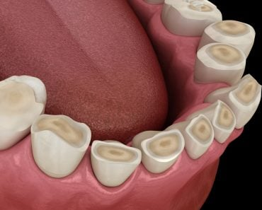 Dental,Attrition,(bruxism),Resulting,In,Loss,Of,Tooth,Tissue.,Medically