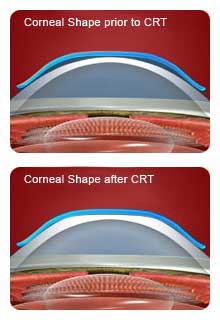 corneal-reshaping-therapy