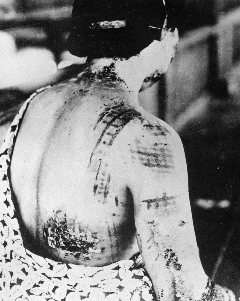 A victim of the Hiroshima nuclear explosion. Heat was absorbed through the black patterns of he kimono, thus giving the burns in the same pattern. Credit: wikimedia.org