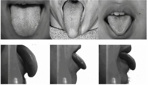Different shapes of tongues (Image Credit: http://link.springer.com)