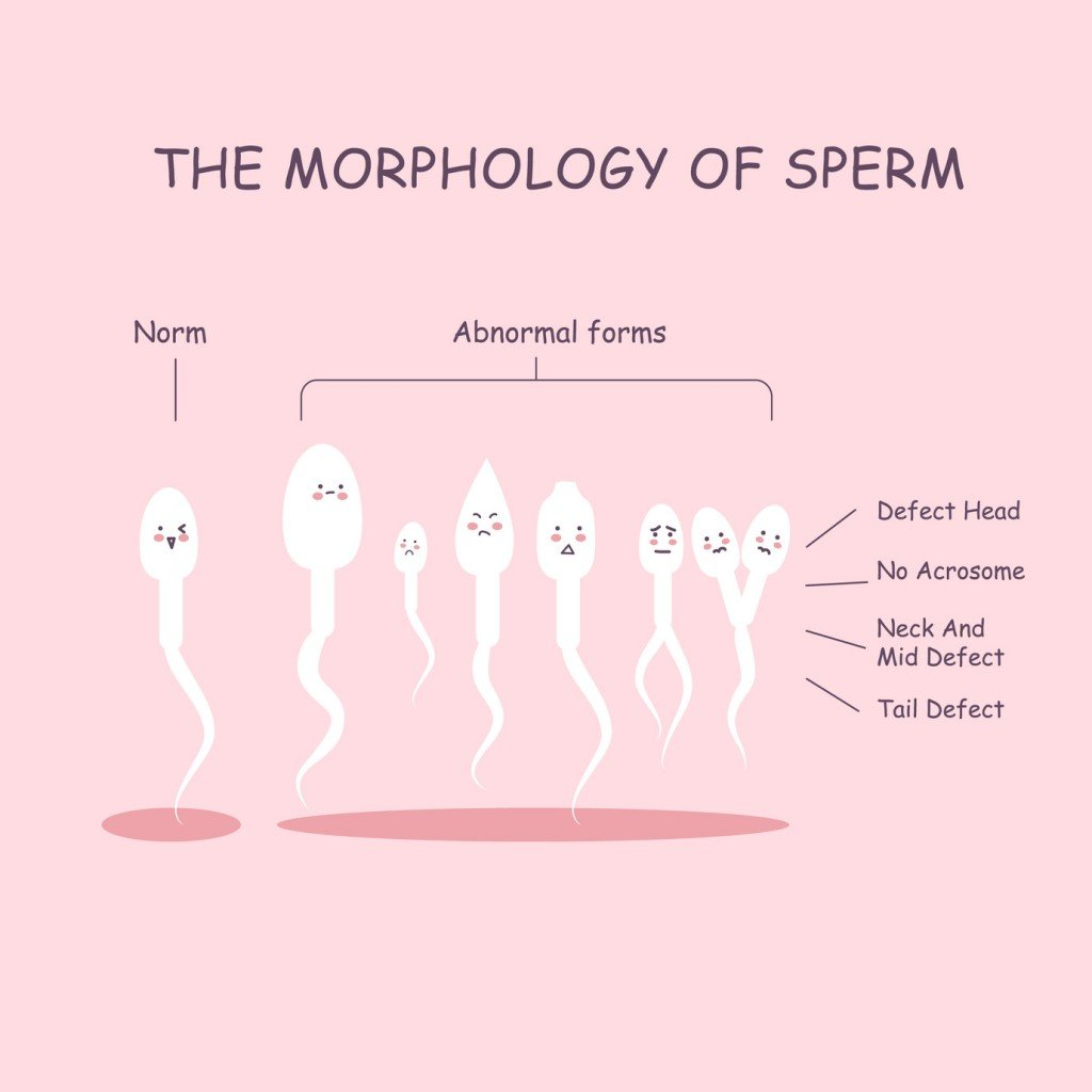 Sperm Morphology (Photo Credit: etoileark / Fotolia)