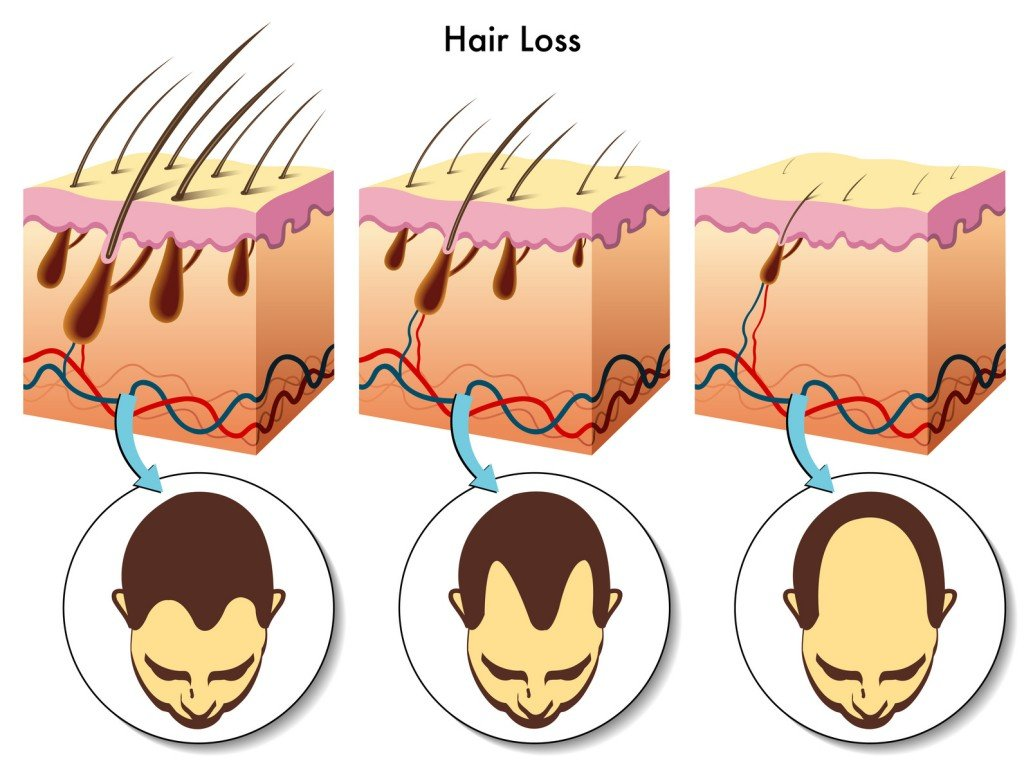 Baldness Over Time (Photo Credit: rob3000 / Fotolia)