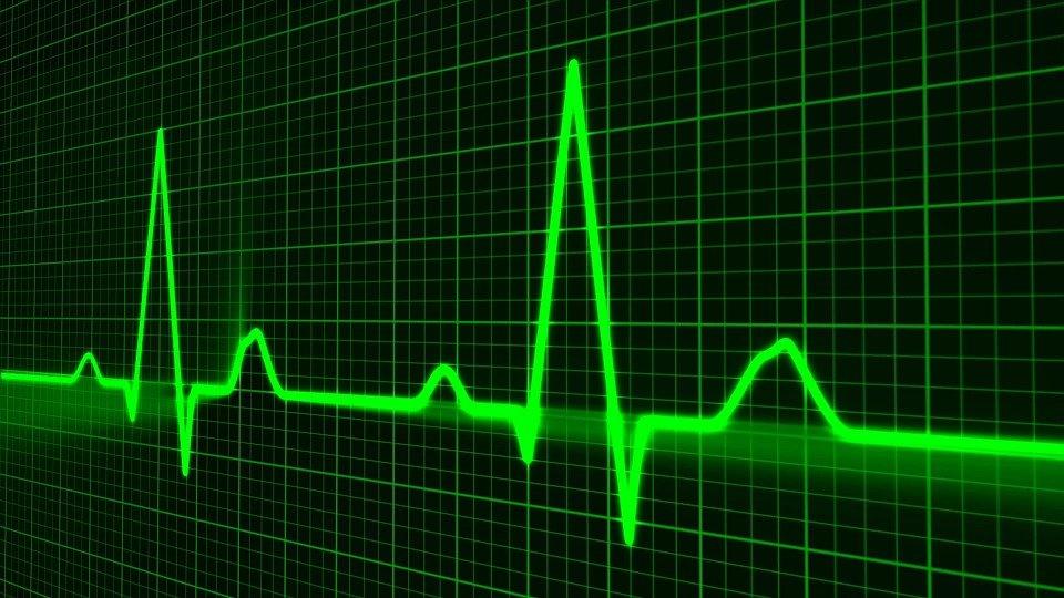 heart rate ecg