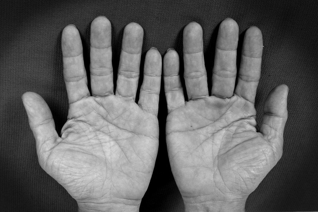 Old man black & white hand palm lines