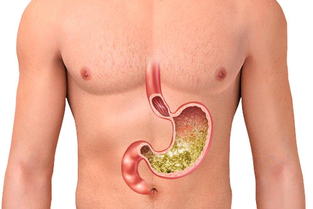 Drugs affecting gastric acid secretion and motility
