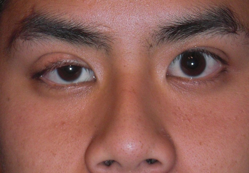 Mild right eyelid ptosis