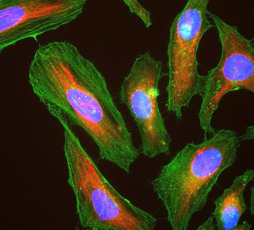 HeLa cells stained with antibody to actin (green) , vimentin (red) and DNA (blue)
