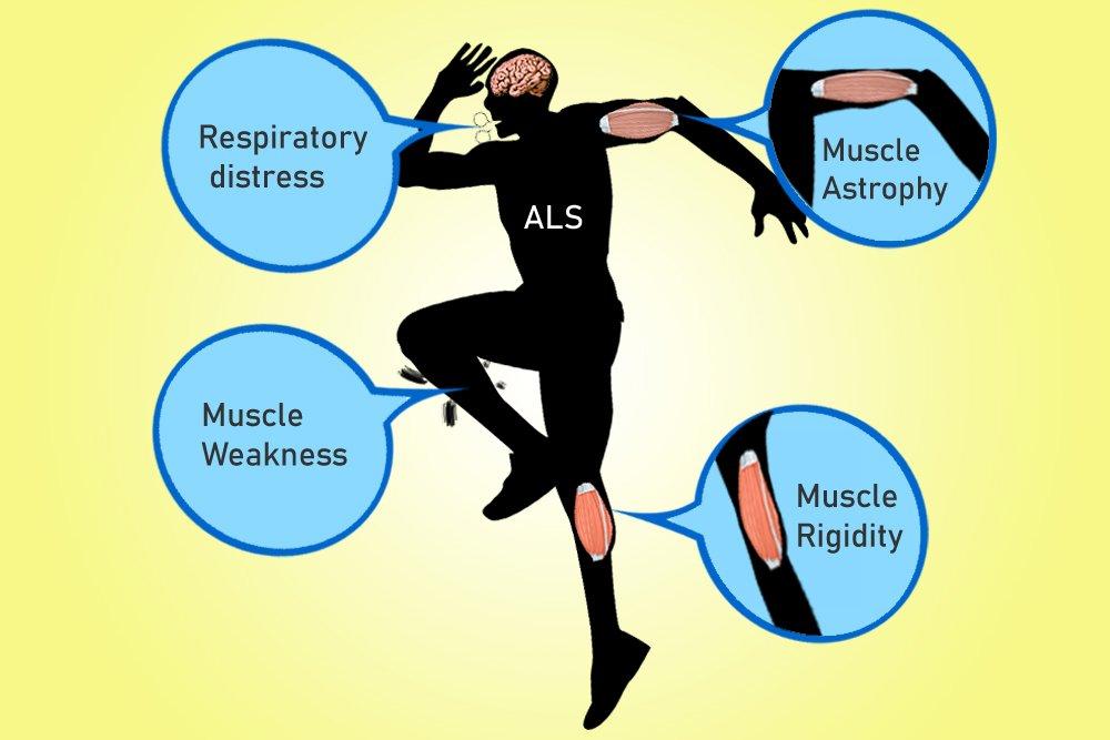 ALS symptoms