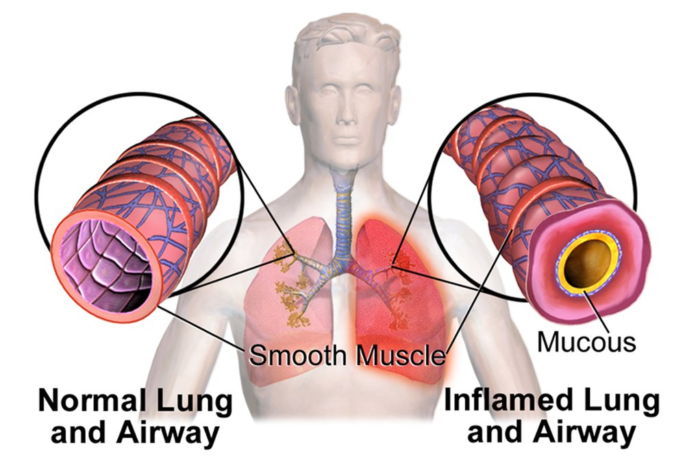 Lungs Normal vs InflamedAirway
