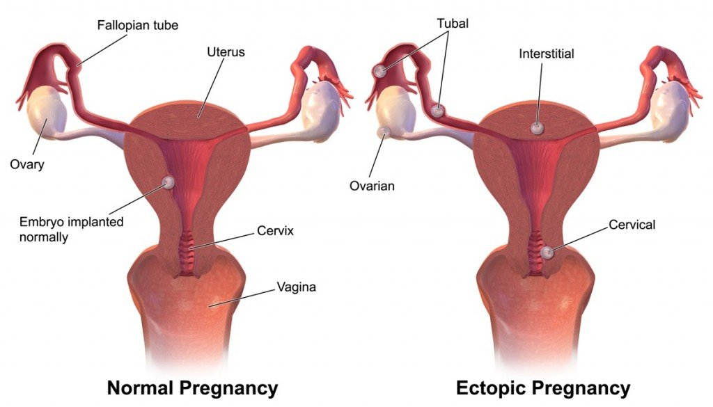 Ectopic_Pregnancy