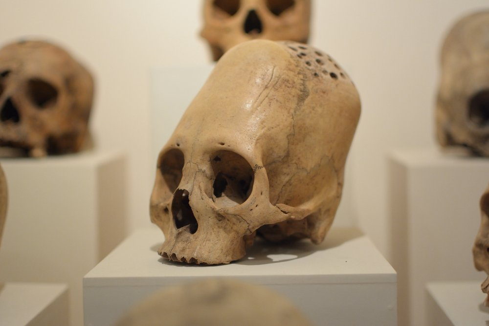 Elongated skulls of ancient Paracas people with evidences of surgical trepanation(TravelStrategy)s