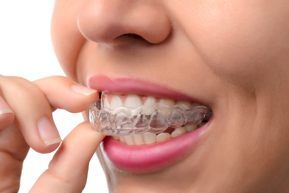 Woman wearing orthodontic silicone trainer. Invisible braces - Image(PavelSm)S