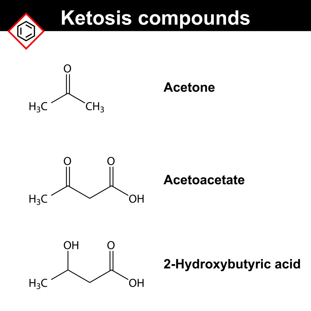 Ketone bodies(chromatos)S