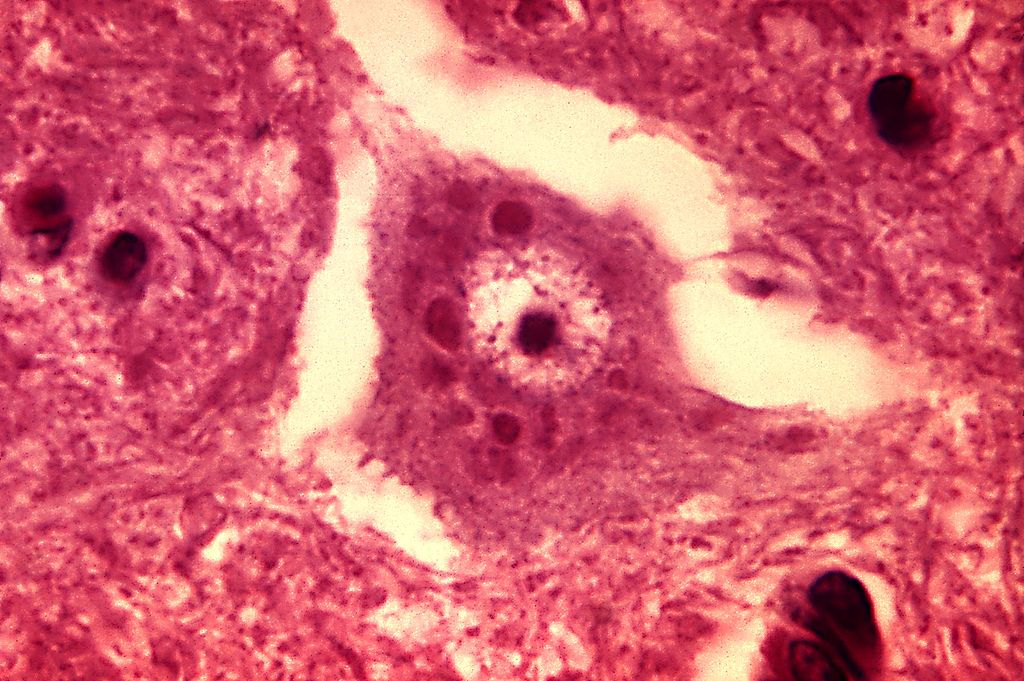 Rabies encephalitis Negri bodies PHIL 3377 lores