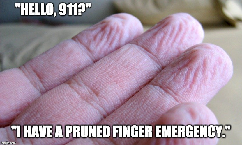 i have a pruned finger emergency meme