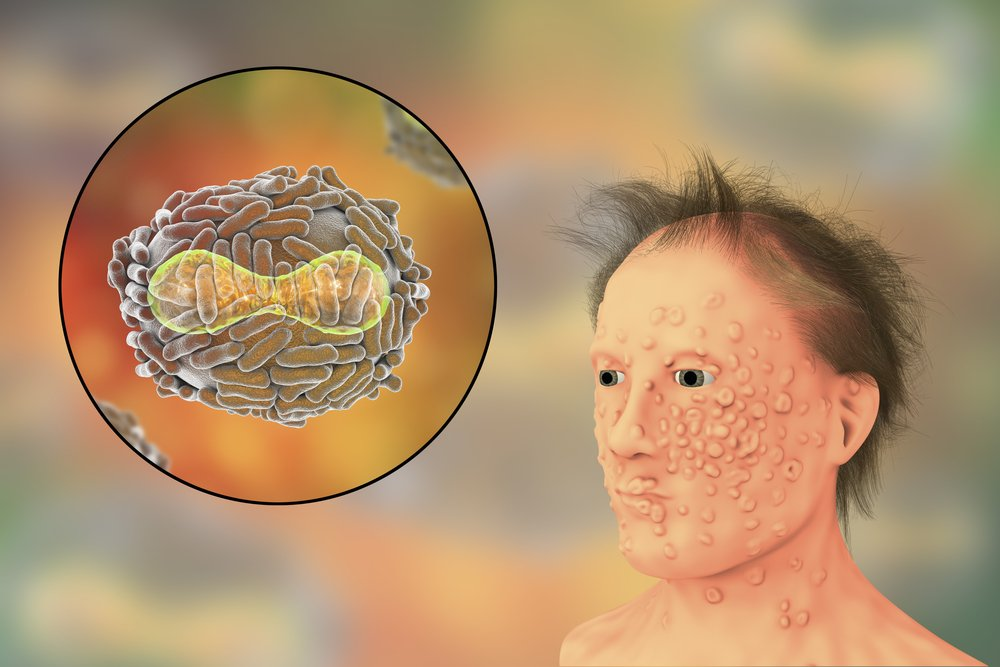 A man with smallpox infection and variola virus(Kateryna Kon)s