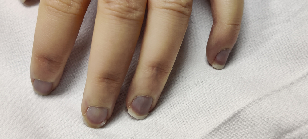 Acrocyanosis and purpura fulminans on distal finger(kris4to)s