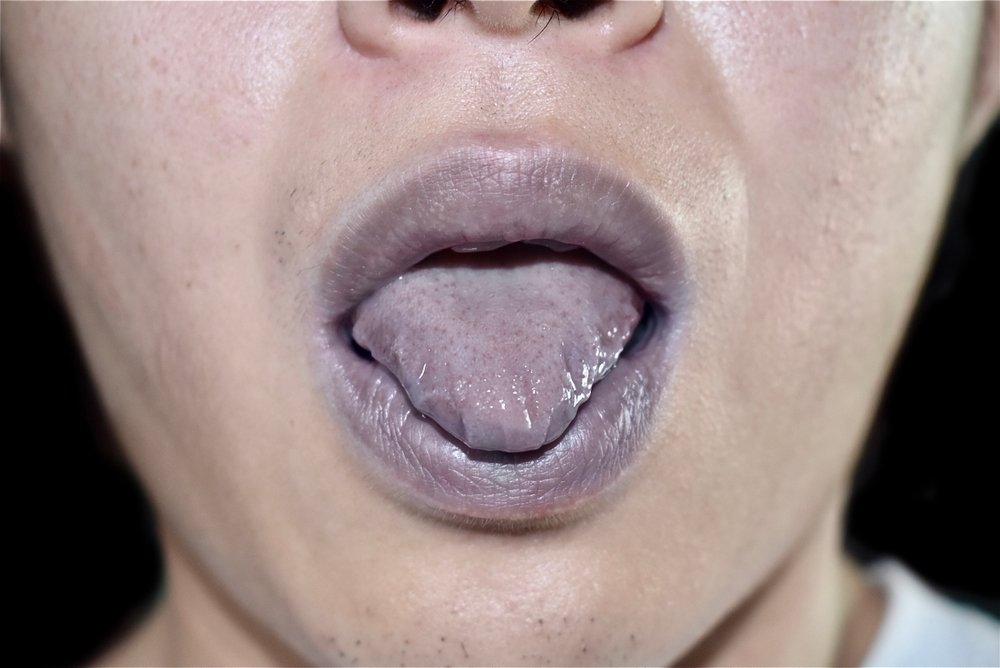 Cyanotic lips and tongue or central cyanosis at Southeast Asian(Zay Nyi Nyi)s
