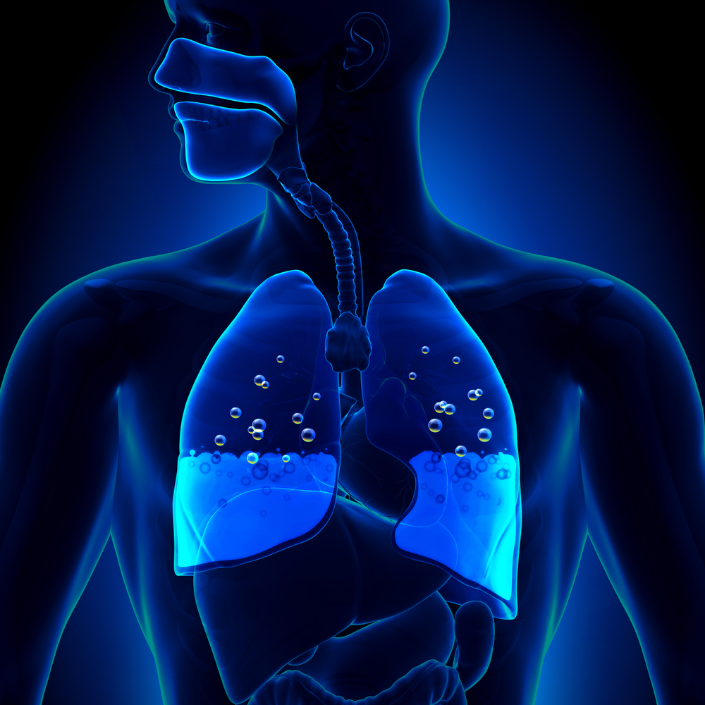Pulmonary Edema - Water in Lungs Anatomy(decade3d - anatomy online)S