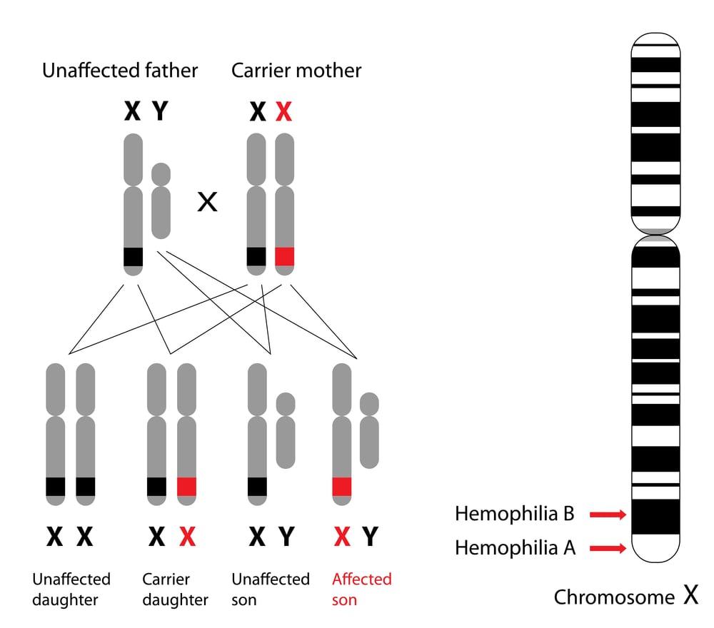 Genetics of hemophilia, A and B(Alila Medical Media)S