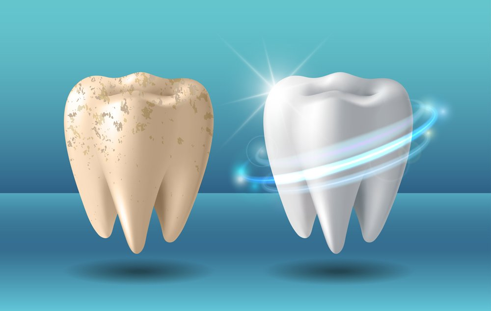 Comparison of clean and dirty tooth before and after whitening treatment(tassel78)s