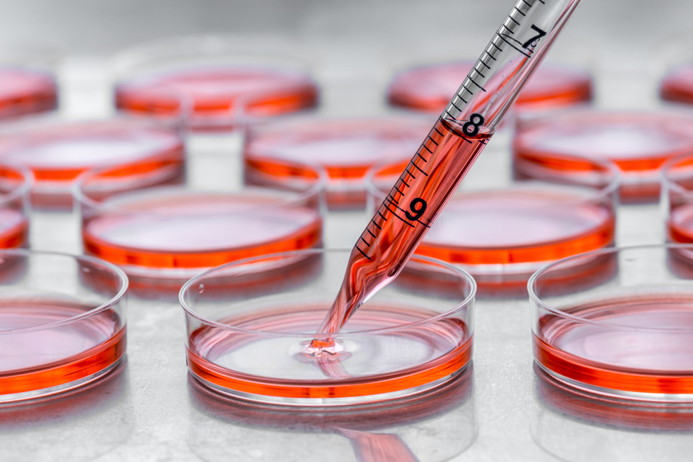 Culturing cells in tissue culture plates(Hakat)S