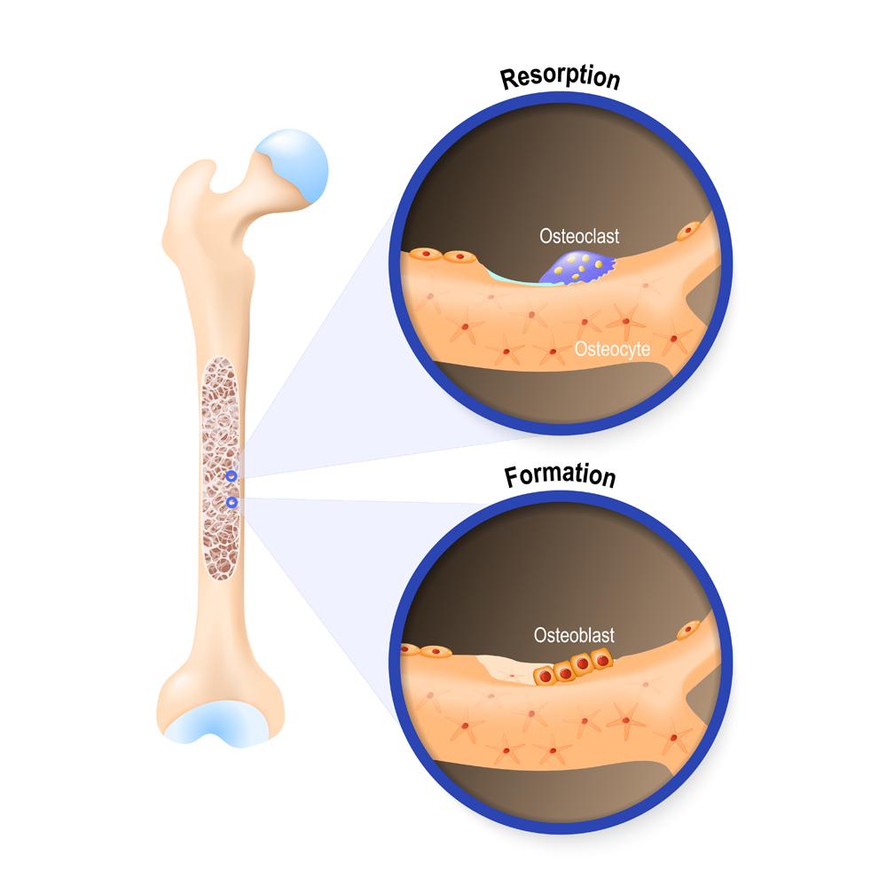 Osteoblast and osteoclast(Designua)s