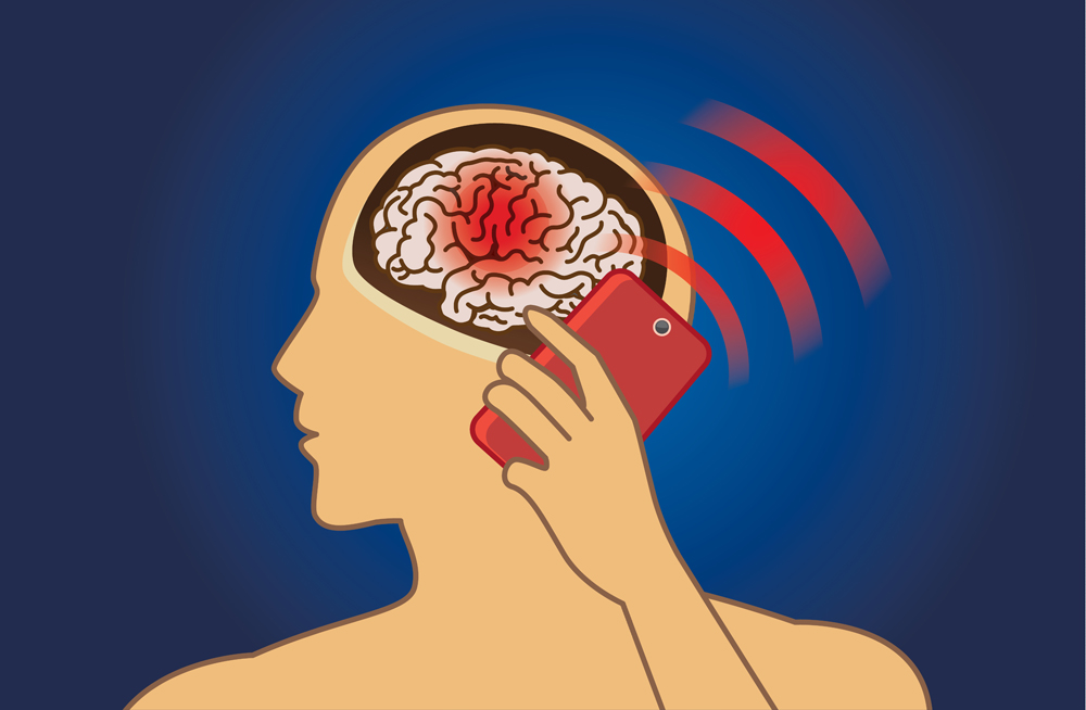Brain damage from using mobile phone radiation in a long time(solar22)s